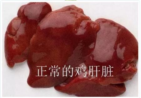 正常的肝脏